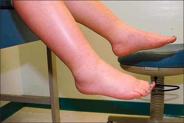 Почему опухают ноги и как это лечить